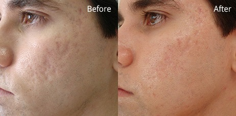 Acne And Pigmentation Treatment